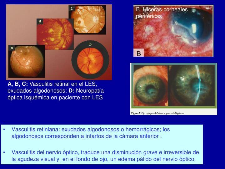 B. Ulceras corneales periféricas
