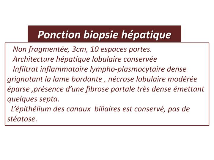Ponction biopsie hépatique