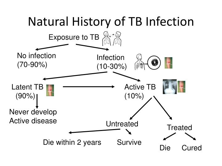 Natural History of TB Infection