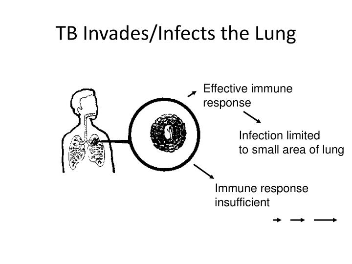 TB Invades/Infects the Lung