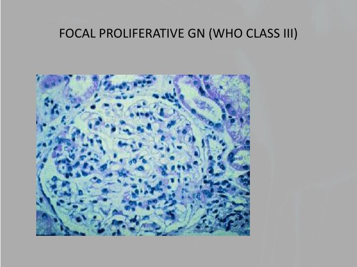 FOCAL PROLIFERATIVE GN (WHO CLASS III)