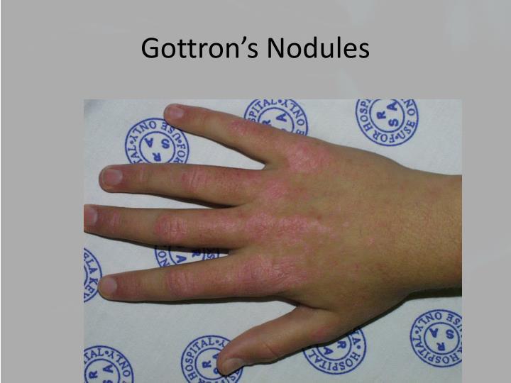 Gottron's