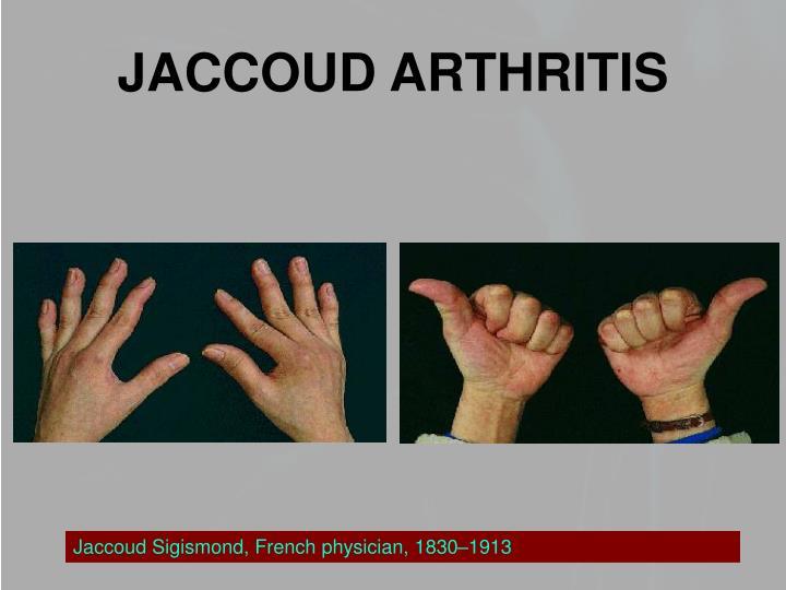 JACCOUD ARTHRITIS