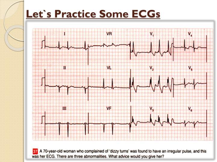 Let`s Practice Some ECGs