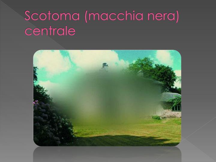 Scotoma (macchia nera) centrale