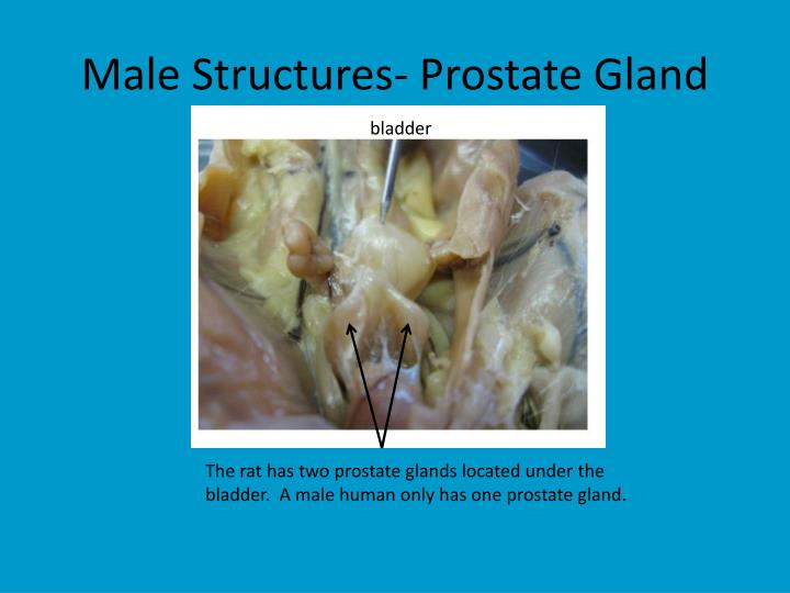 Male Structures- Prostate Gland