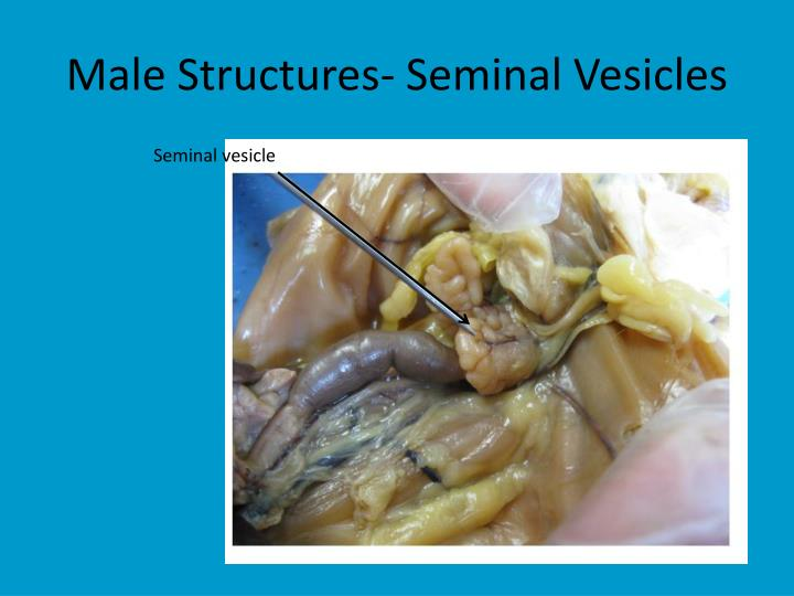 Male Structures- Seminal Vesicles