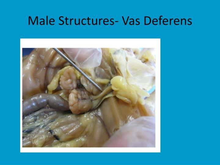 Male Structures- Vas Deferens
