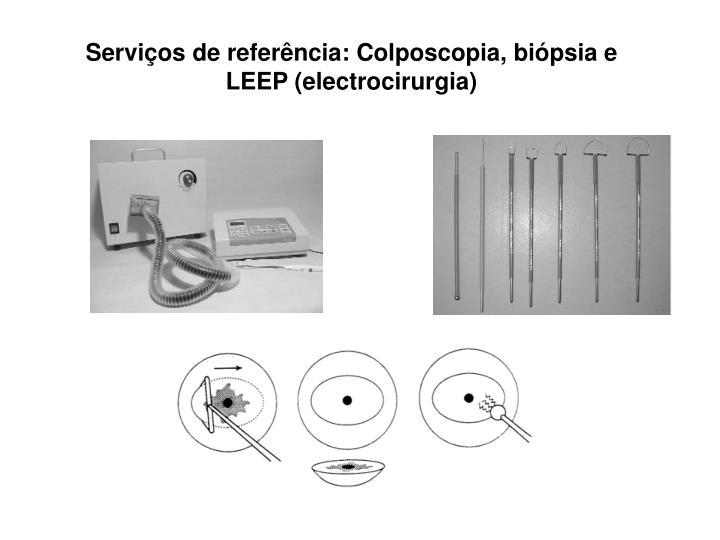 Serviços de referência: Colposcopia, biópsia e LEEP (electrocirurgia)