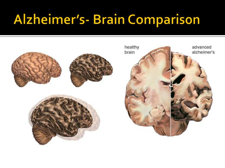 Alzheimer's- Brain Comparison