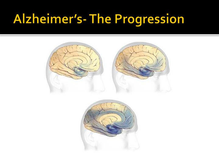 Alzheimer's- The Progression