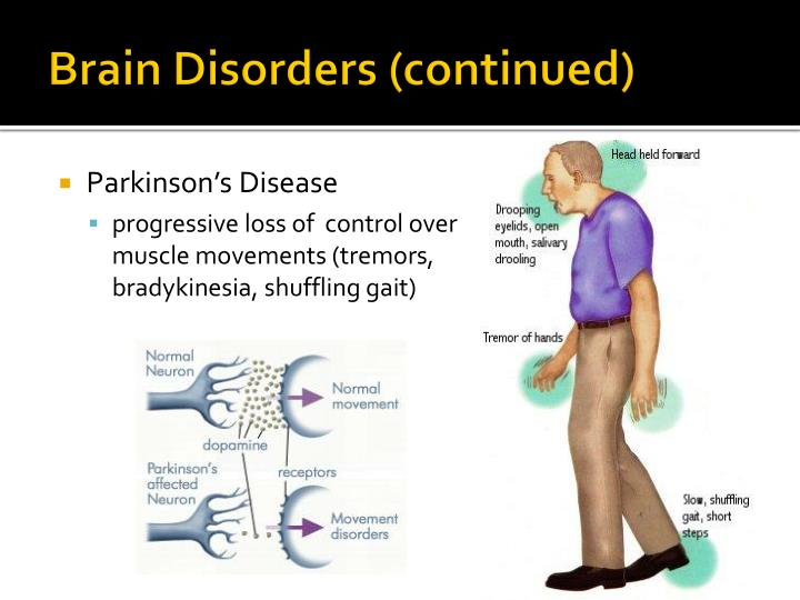 Brain Disorders (continued)