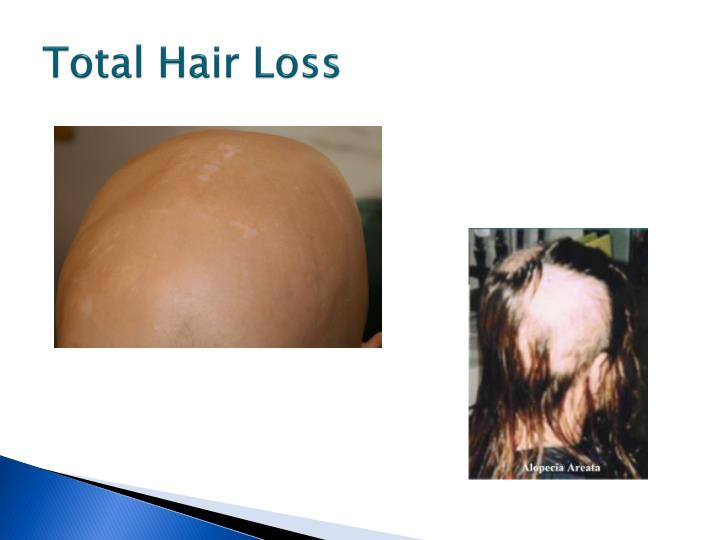 Total hair loss