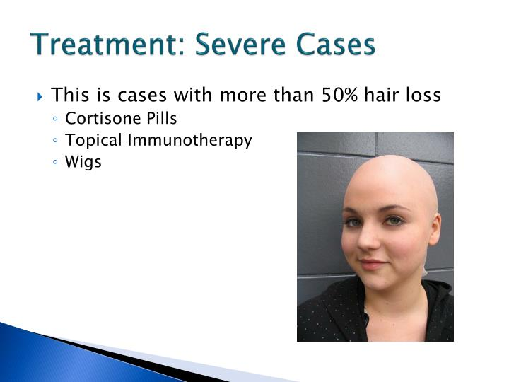 Treatment: Severe Cases