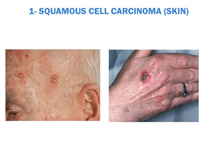 1 squamous cell carcinoma skin