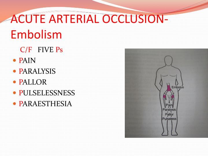 PPT - ARTERIAL DISEASES PowerPoint Presentation - ID:2378936