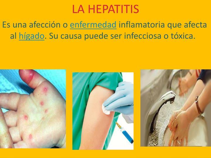 LA HEPATITIS