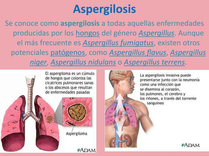 Aspergilosis