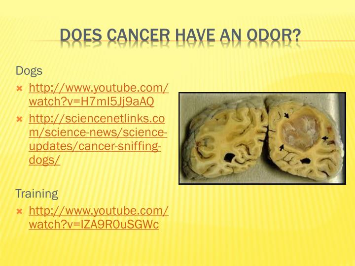 Does cancer have an odor?
