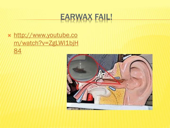 Earwax fail!