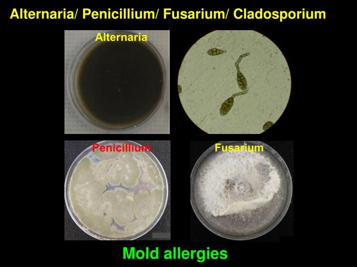 Alternaria/ Penicillium/ Fusarium/ Cladosporium