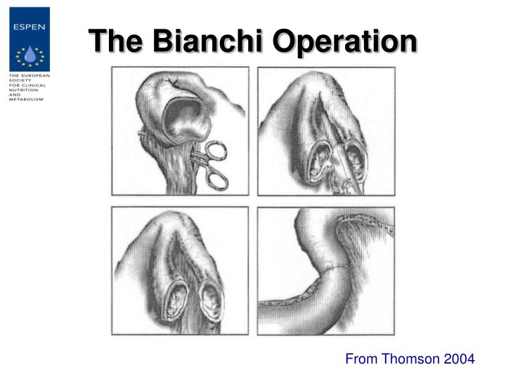 The Bianchi Operation