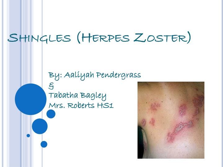 about shingles essay