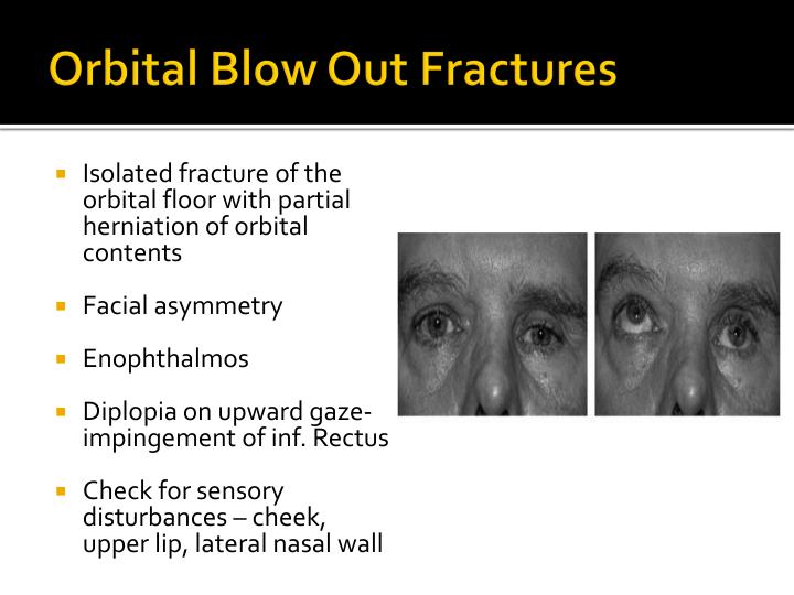 Orbital Blow Out Fractures