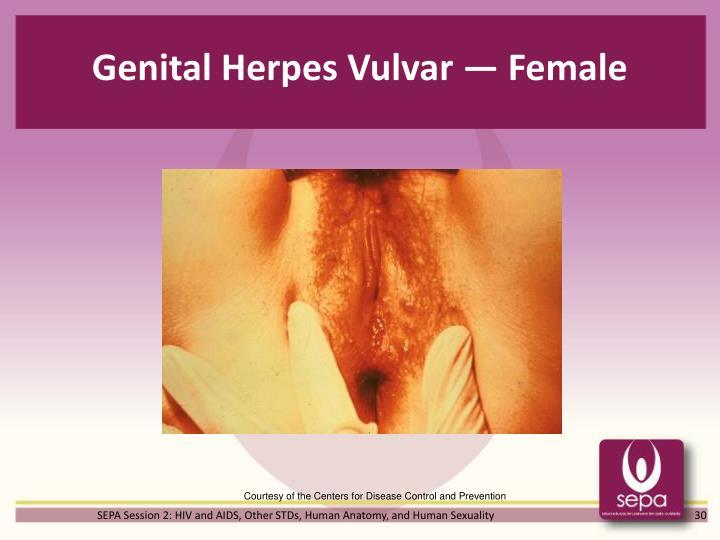 Genital Herpes Vulvar — Female