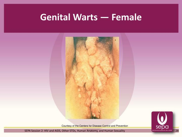 Genital Warts — Female