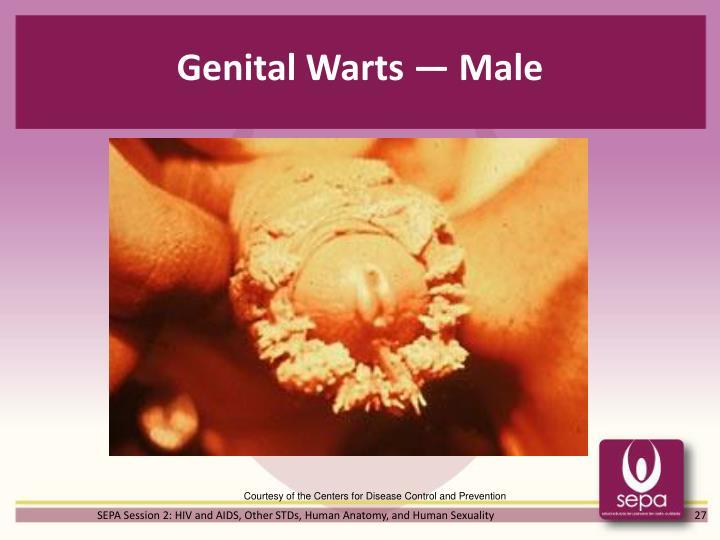 Genital Warts — Male