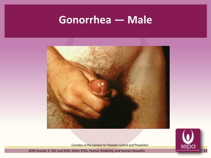 Gonorrhea — Male