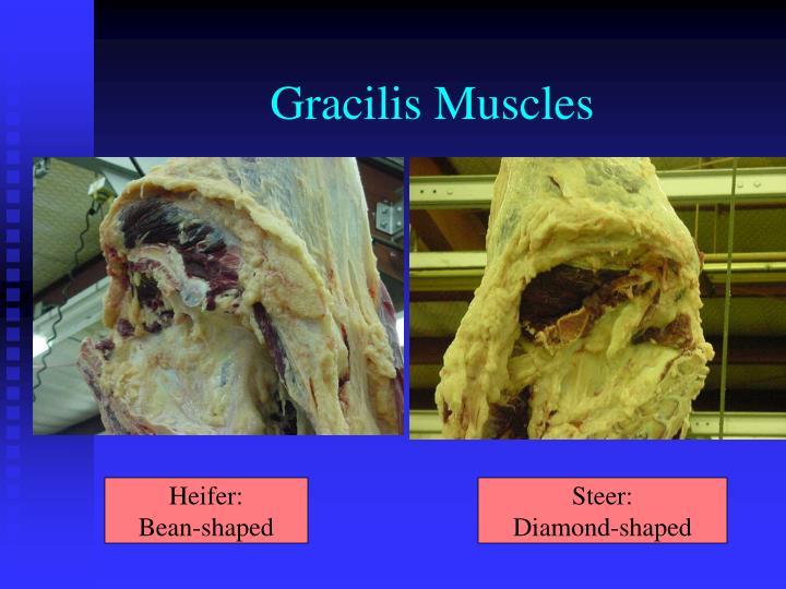 Gracilis Muscles