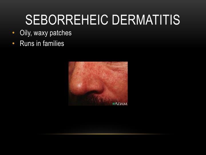 SEBORREHEIC DERMATITIS