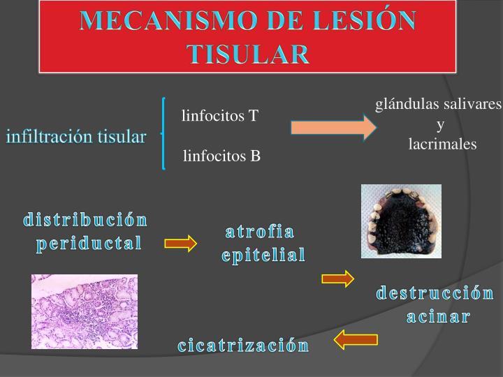 MECANISMO DE LESIÓN TISULAR