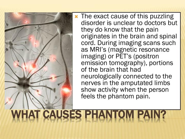The exact cause of this puzzling disorder is unclear to doctors but they do know that the pain originates in the brain and spinal cord. During imaging scans such as MRI's (magnetic resonance imaging) or PET's (positron emission tomography), portions of the brain that had neurologically connected to the nerves in the amputated limbs show activity when the person feels the phantom pain.