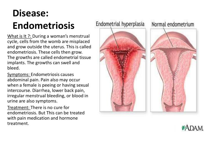 Disease: Endometriosis