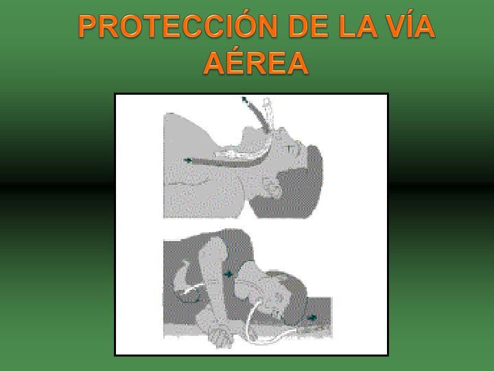 PROTECCIÓN DE LA VÍA AÉREA