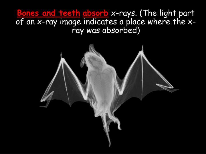 Bones and teeth