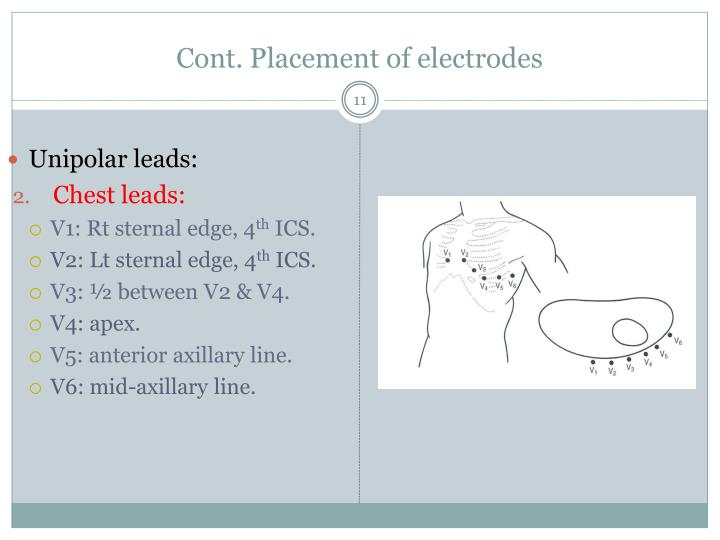 Cont. Placement of electrodes