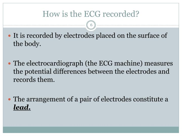 How is the ECG recorded?