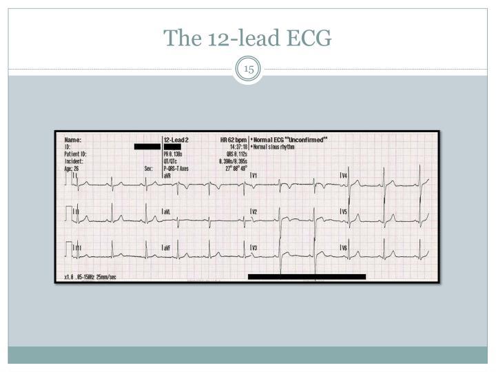 The 12-lead ECG