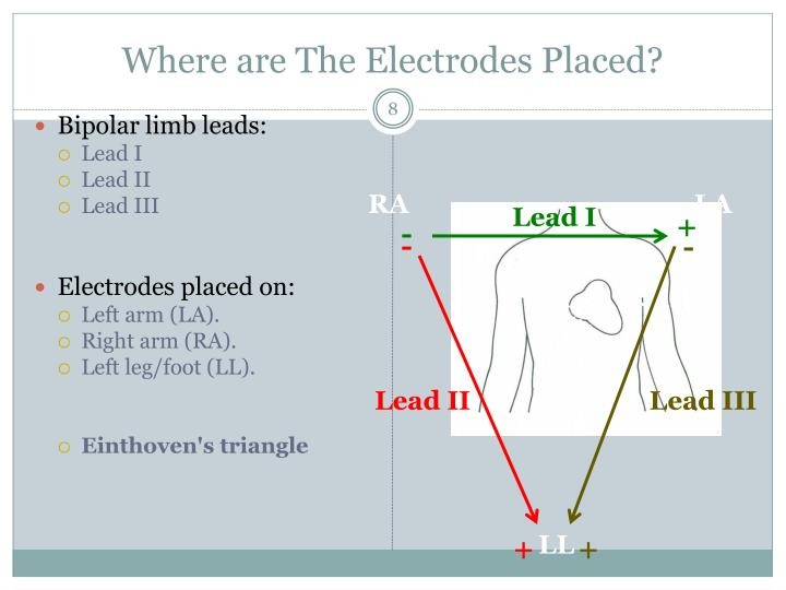 Where are The Electrodes Placed?