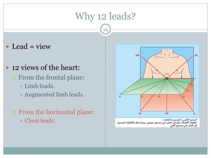 Why 12 leads?