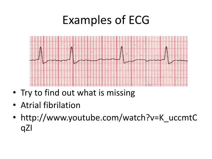 Examples of ECG