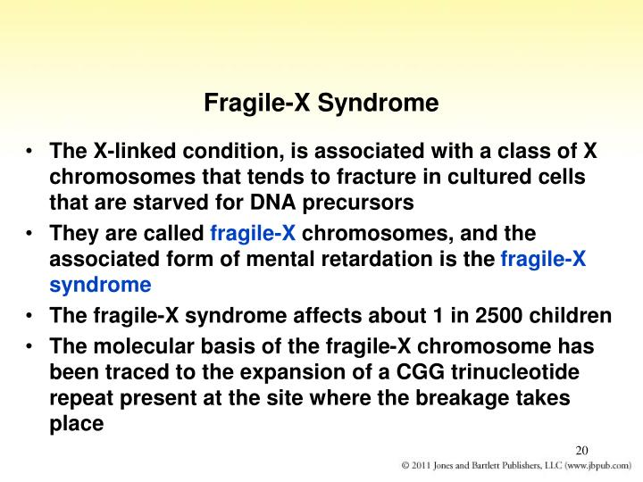 Fragile-X Syndrome