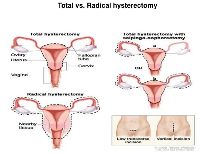 Ppt Treatment For Cervical Cancer Powerpoint