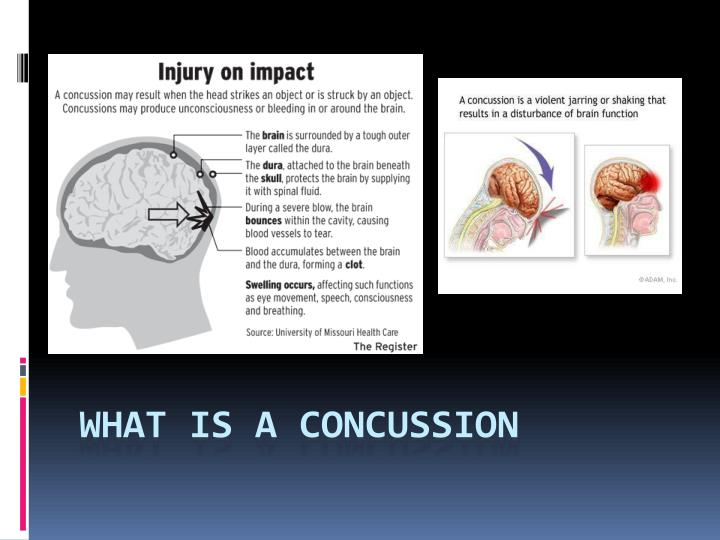 What is a concussion