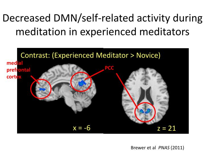 Decreased DMN/self-related activity during meditation in experienced meditators