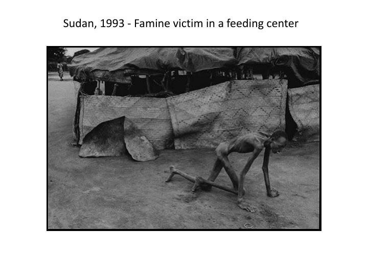 Sudan, 1993 - Famine victim in a feeding center